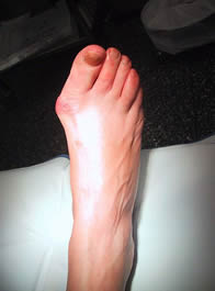 Bunion Treatment in Essex